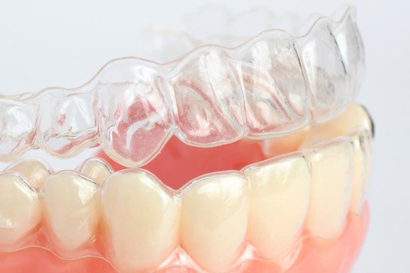Invisalign Springfield IL | Ruggless Dental