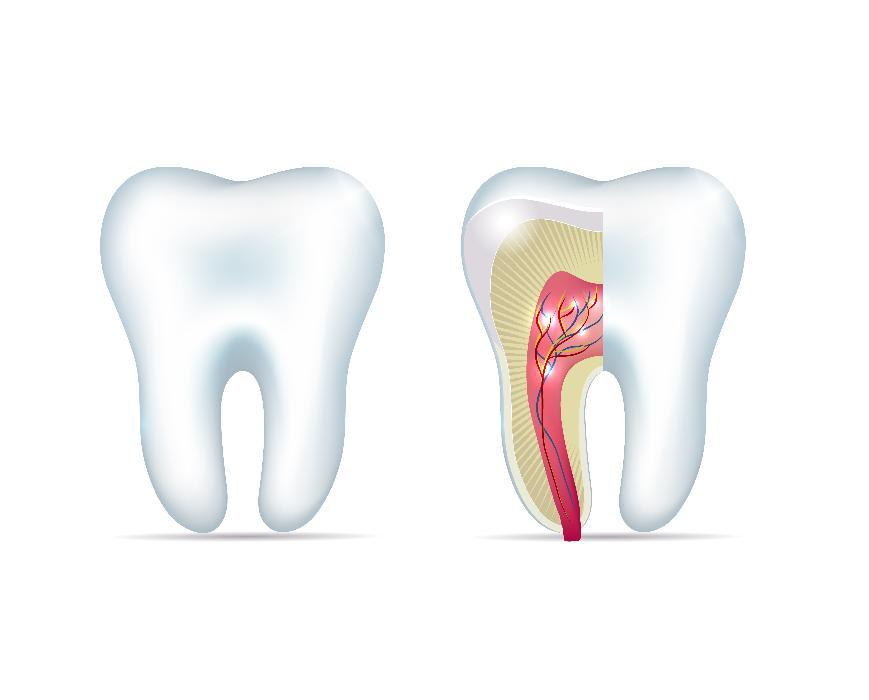 Diagram of healthy tooth and tooth with infected root at Springfield dentist office