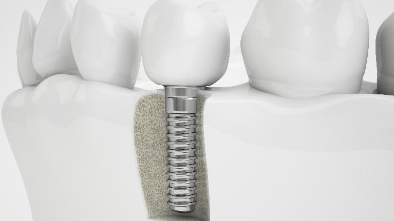 dental implant in bone | dental implants springfield il