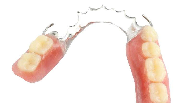 image of Dentures | Springfield IL