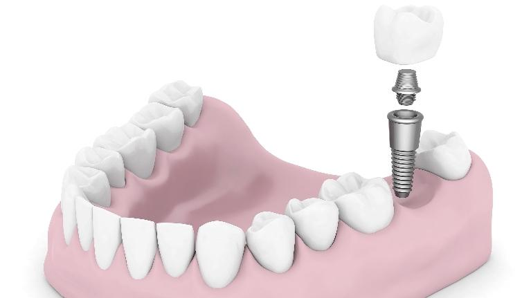 Springfield IL Dental Implants