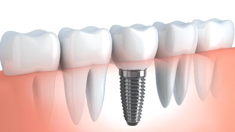 Dental Implants Springfield IL