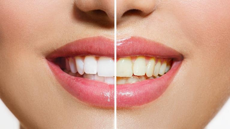 woman smiling with white teeth | teeth whitening springfield il