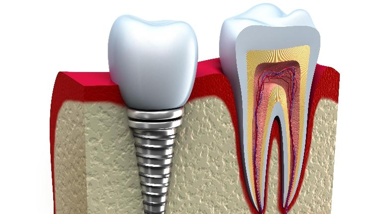 Dental Implants Springfield | Springfield IL Dentist