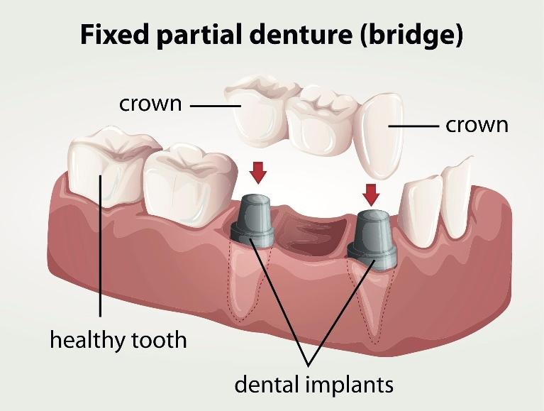 diagram of a fixed partial denture | Dental Implants Springfield IL