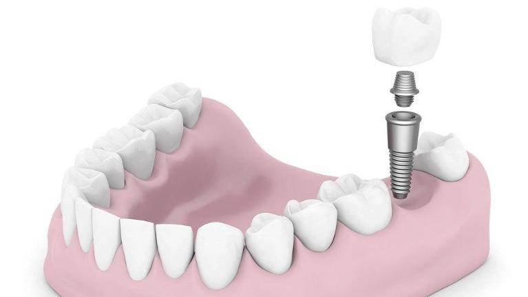 Dental Implants | Dental Blog Springfield IL | Dr. Shane Ruggless