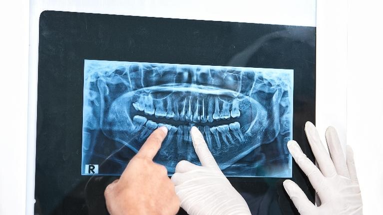 image of a panoramic set of x-rays | Tooth Extractions Springfield IL