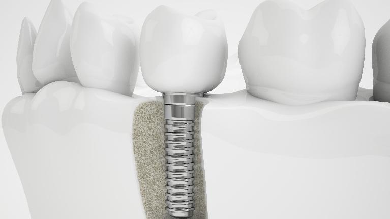 Dental Implant | Ruggless Dental