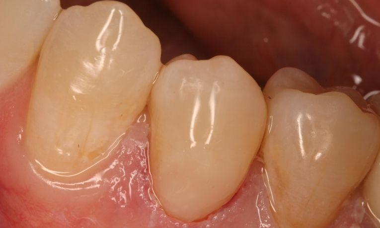 image of a tooth that had a dental filling at the gumline