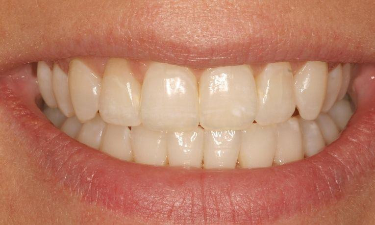 Invisalign followed up by Bleaching and Zoom Whitening