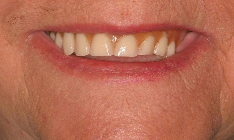 Dentures | Ruggless Dental
