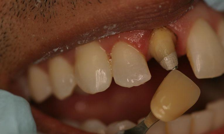 Dental Crown | Ruggless Dental