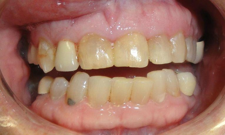Porcelain Crowns | Ruggless Dental