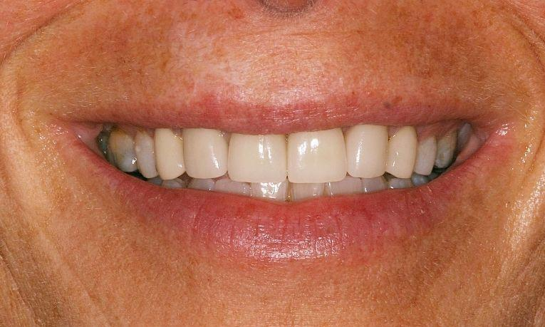 Crowns-with-Crown-Lengthening-Gum-Surgery-After-Image