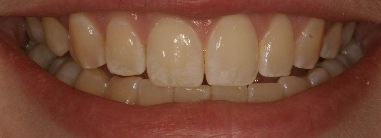 Custom Porcelain Crown | Ruggless Dental