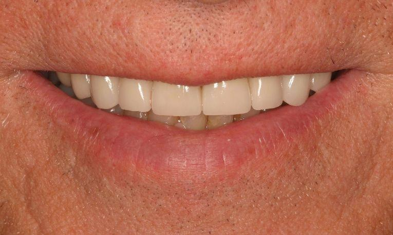 Dental-Crowns-After-Image