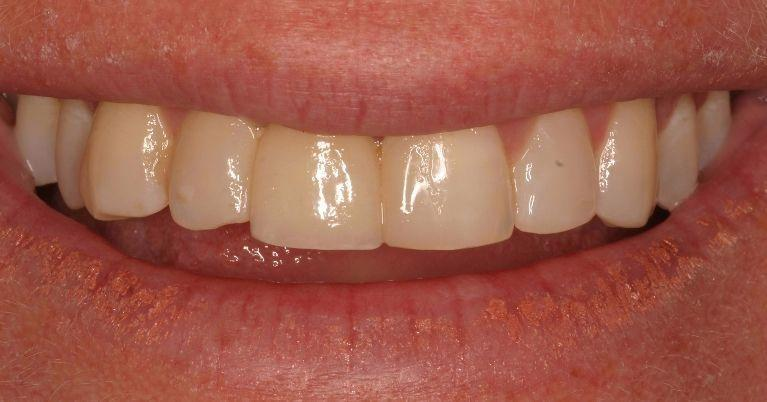 Dental-Implant-Crowns-with-Dental-Bonding-After-Image