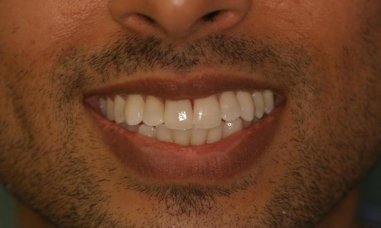 Dental-Crown-and-Cosmetic-Dentistry-After-Image