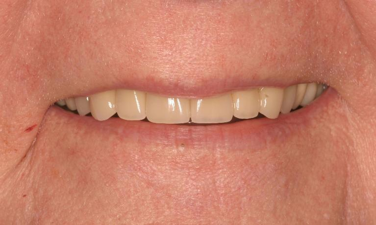 Broken-Tooth-Dental-Bridge-and-Crowns-were-used-in-procedure-After-Image