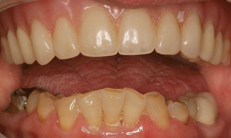 Amazed-with-new-smile-Crowns-and-Bridges-Before-Image