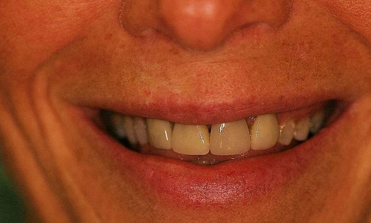 Crowns-with-Crown-Lengthening-Gum-Surgery-Before-Image