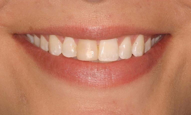 Dental Veneers | Ruggless Dental