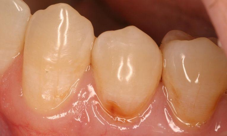 Gum-line-cavity-Before-Image