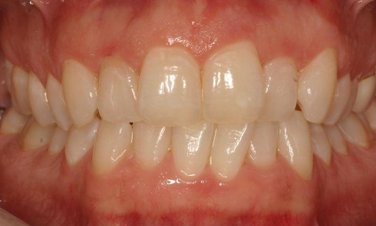 Invisalign-followed-up-by-Bleaching-and-Zoom-Whitening-Before-Image